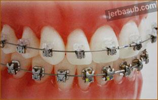عروض تقويم الاسنان بالمدينه المنوره