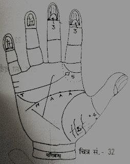 हथेली में थायराइड के निशान | Indications Of Thyroid On Hand
