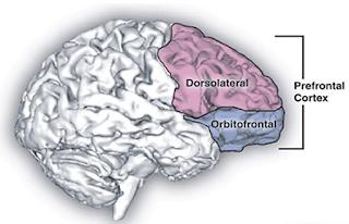 Veränderter Musikgeschmack durch Gehirn-Stimulation