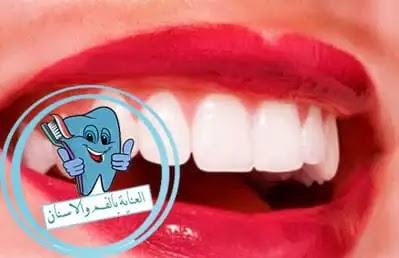 تلبيس الاسنان, تلبيس الاسنان بعد سحب العصب, هل تلبيس الاسنان مؤلم, تلبيس الاسنان الامامية بالصور, تلبيس الاسنان بالانجليزي, هل تلبيس الاسنان ضروري, تلبيس الاسنان التجميلي, اضرار تلبيس الاسنان الاماميه, اضرار تلبيس الاسنان, سواد اللثه بعد تلبيس الاسنان, علاج التهاب اللثه بعد تلبيس الاسنان, هل تلبيس الاسنان يحتاج بنج, الم اللثه بعد تلبيس الاسنان, تلبيس الاسنان الامامية بالسيراميك, تلبيس الاسنان بالسيراميك, تلبيس الاسنان كل سن لوحده, ما فائدة تلبيس الاسنان, تلبيس الاسنان كلها, ما بعد تلبيس الاسنان, حساسية تلبيس الاسنان, علاج تلبيس الاسنان, متى يجب تلبيس الاسنان
