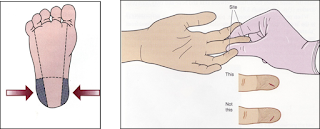 Lokasi tusukan kulit pada bayi dan dewasa