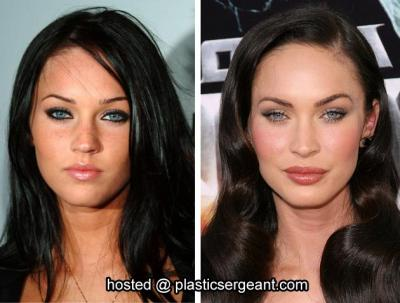Kate Beckinsale Plastic Surgery Before And After Kate