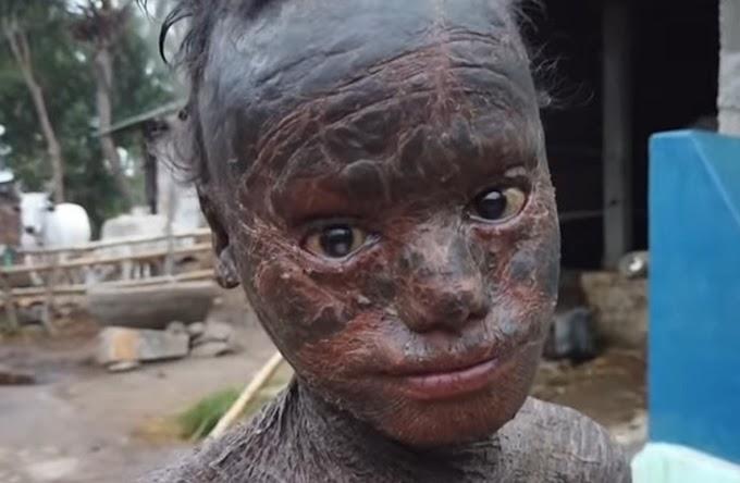 ΣΗΜΕΙΑ ΚΑΙΡΩΝ...ΕΝ ΕΤΕΙ 2020....;;;10χρονο Αγοράκι  ΜΕΤΑΜΟΡΦΩΝΕΤΑΙ σε «ερπετό» ΚΑΙ προκαλεί τρόμο...!!Σοκάρει το ΒΙΝΤΕΟ