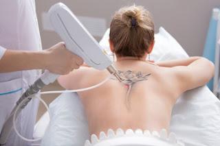 Skin Numbing Cream for Tattoos