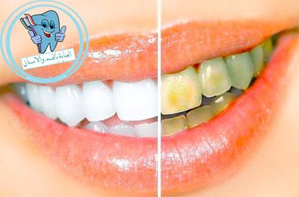 طريقة تبييض الاسنان في البيت
