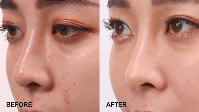 皮秒雷射案例-膚質改善-李詠馨醫師-麗波永康國際診所