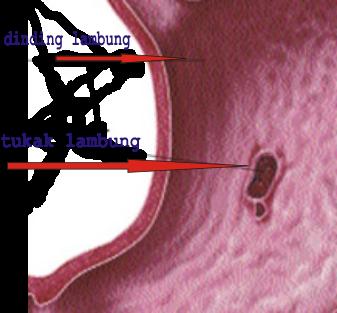 Obat Tukak Lambung