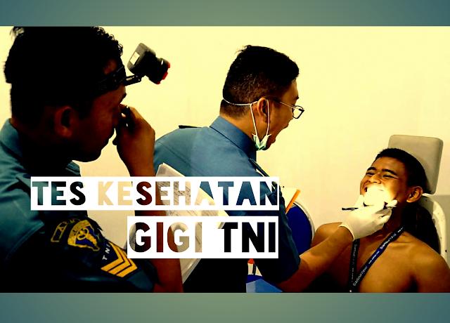 Tips 100% Lolos Tes Kesehatan Gigi TNI Terbaru