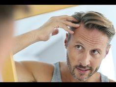 تقنية.زراعة الشعر.تكلفة.زراعة الشعر.مصل.الشعر.منتجات للشعر.الآثار الجانبية.لزراعة الشعر.علاج.تساقط الشعر.فقدان تساقط الشعر.عند الرجال