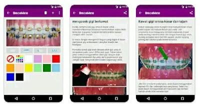 Aplikasi Kawat Gigi - BraceMate