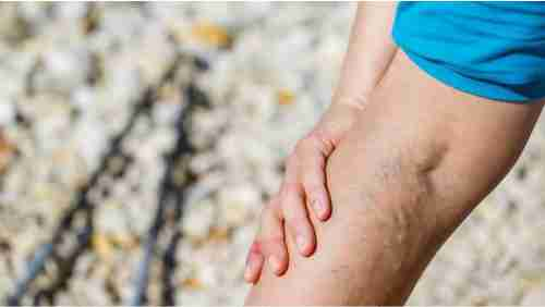 Cara Menghilangkan Gejala Varises Di kaki Secara Alami Menggunakan Bahan Alami      Cara Menghilangkan Gejala Varises Di kaki Secara Alami     Cara Hilangkan Varises Secara Alami - Pernahkah anda melihat kaki seseorang terutama pada bagian kaki terutama betis dan paha nampak seperti ada urat yang menonjol keluar berwarna biru atau ungu tua dan terkadang bentuknya menyerupai simpul atau tali berpilin, itu adalah tanda yang bisa dilihat jika seseorang mengalami gejala varises.    Varises adalah kondisi ketika pembuluh darah vena membengkak. Pembuluh darah vena yang membengkak ini menyebabkan timbulnya urat-urat berwana  agak kebiru-biruanan atau keunguan yang bentuknya menonjol di permukaan kulit.    Gejala Varises disebabkan oleh darah yang seharusnya dialirkan ke jantung, malah kembali ke kaki. Hal ini terjadi karena katup vena yang berperan mengangkut darah ke jantung tidak berfungsi dengan benar. Akibatnya, aliran balik ke jantung terganggu dan darah mengumpul di vena. Ini mengakibatkan peningkatan tekanan pembuluh darah vena.    Gejala varises ini dapat terjadi di seluruh pembuluh vena dalam tubuh anda. Namun, kondisi ini umumnya terjadi di kaki, terutama betis, karena bagian tersebut adalah bagian yang paling jauh dari jantung dan efek gravitasi membuat darah semakin sulit kembali ke jantung.    Jika dibiarkan terus-terusan, perlahan akan terjadi kebocoran ke pergelangan kaki, sehingga menyebabkan pembengkakan. Orang yang mengalami varises juga akan lebih sering mengalami kaki berdenyut atau kram di malam hari.    Tak jarang juga gejala varises menyebabkan nyeri, pembengkakan, bahkan perdarahan di area yang terkena.    Jika hal tersebut juga terjadi pada betis anda, jangan tunggu sampai parah. Anda bisa coba cara alami berikut ini untuk mengobati gejala varises yang menganggu penampilan anda. Caranya adalah :     1. Menghilangkan Gejala Varises menggunakan Kubis Merupakan sumber vitamin, magnesium, kalsium, potasium dan serat yang memiliki manfaat untuk kesehata