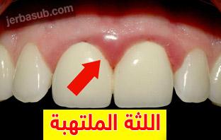 علاج التهاب اللثة بعد زراعة الاسنان