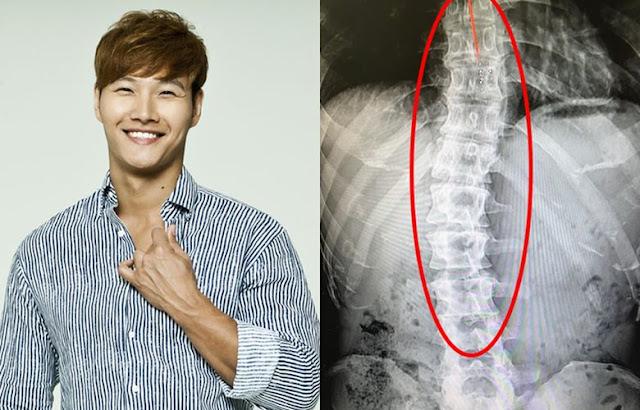Cedera Kim Jong Kook