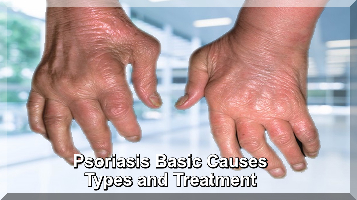 Psoriasis Basic Causes Types and Treatment