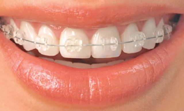 Hukum Mencantikkan Gigi