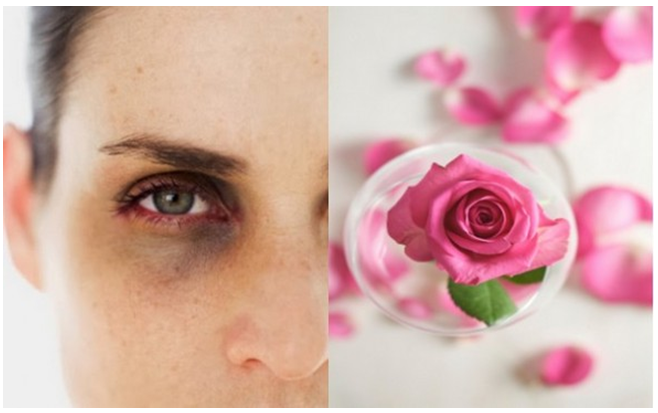Image result for rose water for eyes