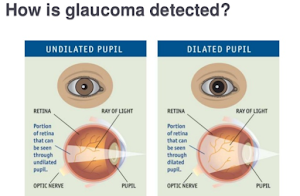 Glaucoma - affects and treatment - of this disease