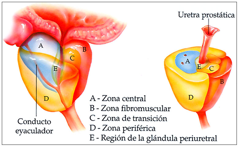 cancer prostata zona transicional