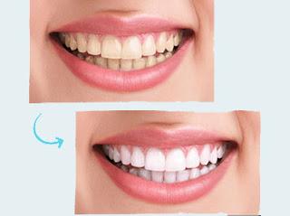 نصائح بعد تبييض الاسنان
