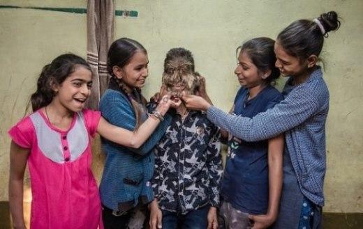 """بالفيديو: حالة نادرة """"الطفل الذئب"""" في الهند؟"""