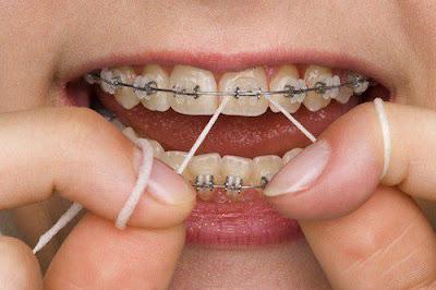 Ưu điểm của niềng răng không nhổ răng
