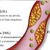 Un estudio a nivel mundial sugiere que los niveles de colesterol han disminuido