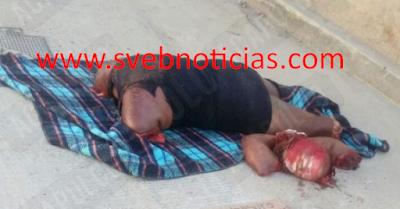 Dejan cuerpo de mujer descuartizado con narco-mensaje en Acapulco Guerrero