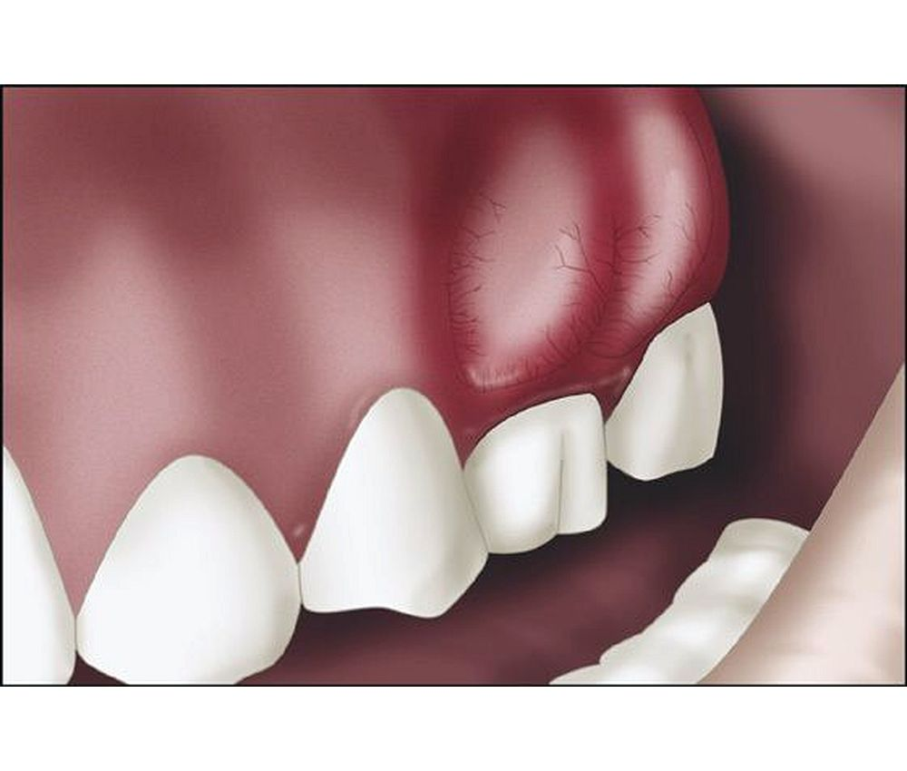 Infeccion dental