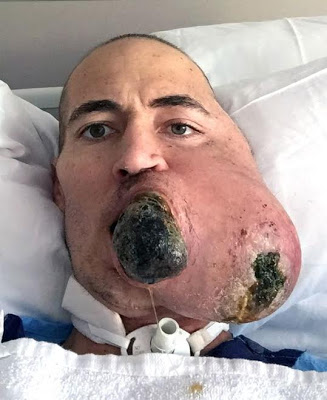 Man who lost half his face to melon-size cancerous tumour gets Terminator-style transplant built by genius surgeon (graphic photos)