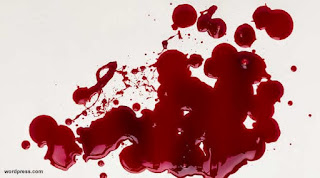 Cara mencegah dan mengatasi darah kental dalam tubuh