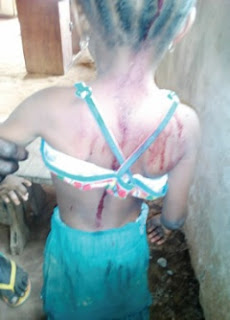 Lagos commercial sex worker breaks daughter's head (photo)