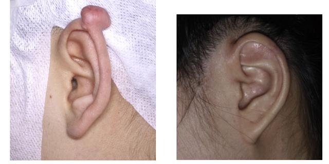 Ear keloid removal Gold Coast