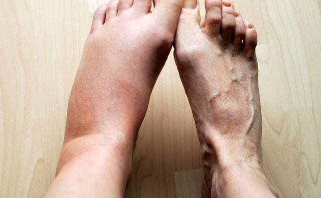 effective leg swelling treatment service