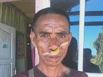 Seorang Petani di Aniaya Warga Desa Lidabesi