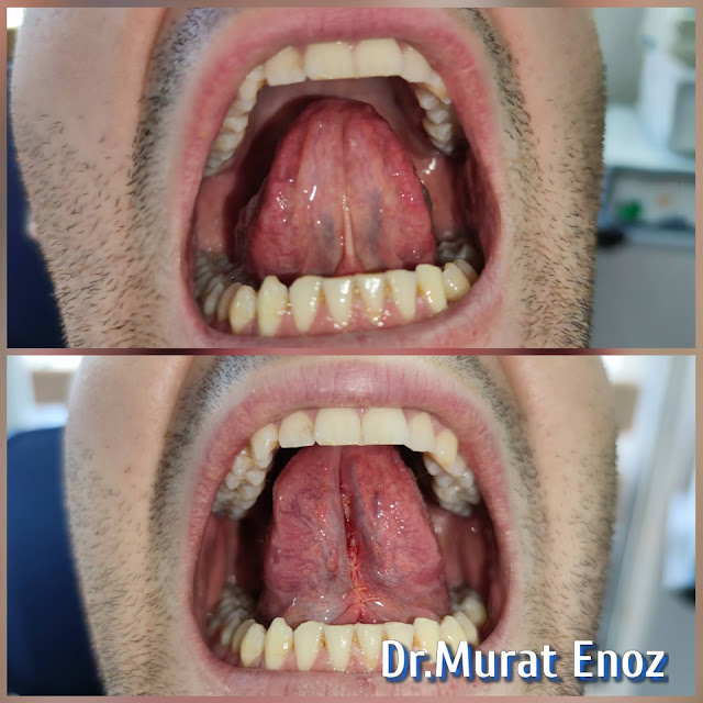 lingual frenectomy with scissor - Tongue tie release
