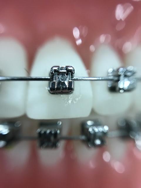 diş teli ağızda nasıl gözüküyor diyorsanız işte