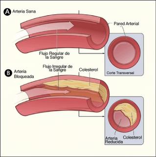 Aumenta el riesgo de enfermedades cardiovasculares