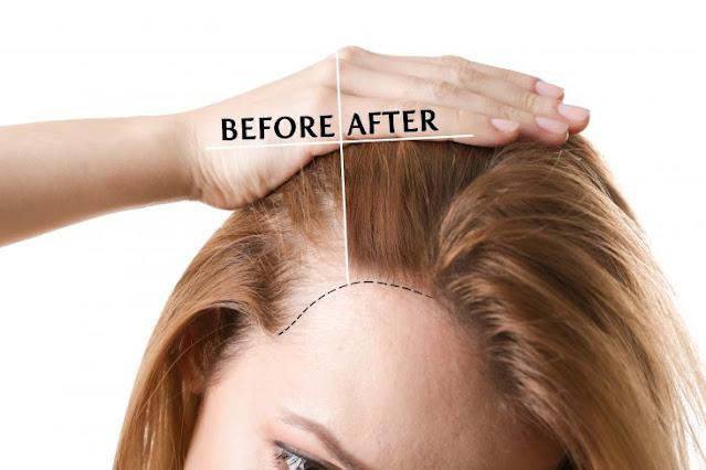 best hair transplant clinic in kolkata