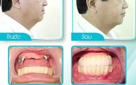 Có nên trồng răng implant hay không?