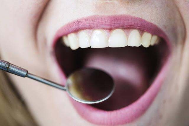 Zalecenia dentysty Toruń po wszczepieniu implantu zębów