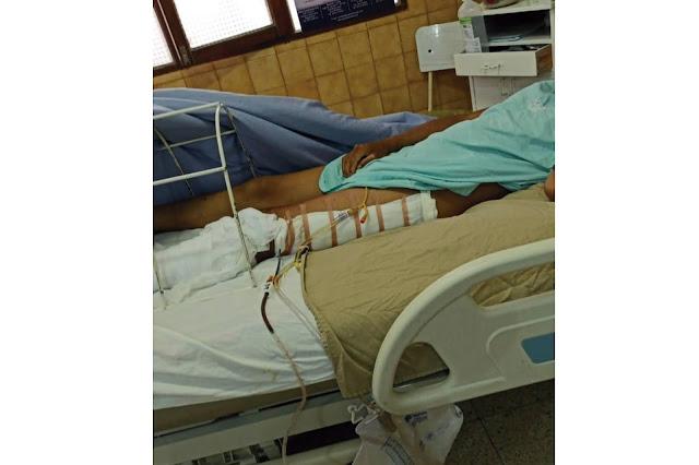Sucre: Joven resultó gravemente herido en accidente de tránsito, requiere 20 mil bolivianos para sus curaciones y pide ayuda (ver foto)