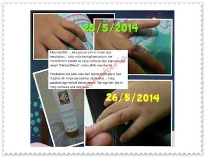 Herbal Blend, Testimoni, Testimoni Herbal Blend, Produk SHAKLEE, Independent SHAKLEE Distributor, Pengedar Shaklee Kuantan, info, Kongsi,