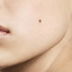 These Are The Secret Meaning Of The Moles in Each Area Of Your Face And Body