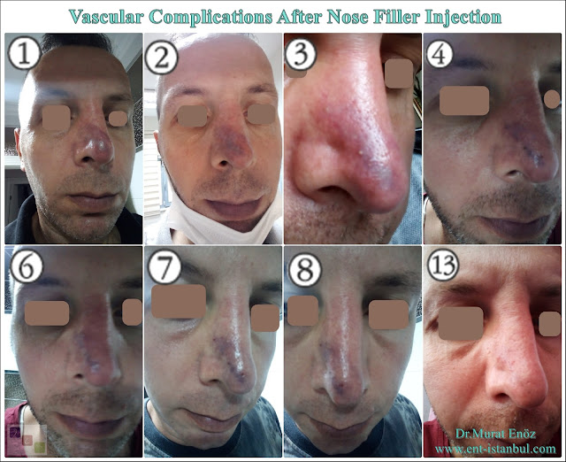 Circulation problems due to nose filler,Risks of non-surgical nose job,Ischemical problems after filler injection,
