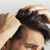 All that You Need to Know About Hair Transplants Treatment