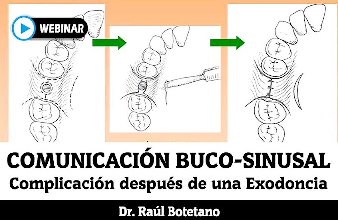 COMUNICACIÓN BUCO-SINUSAL: Complicación después de una exodoncia - Dr. Raúl Botetano