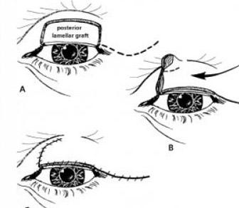 Eyelid Surgery by Prof Dr CN CHUA 蔡鐘能: Ways of Repairing