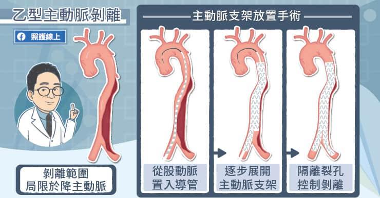 乙型主動脈剝離