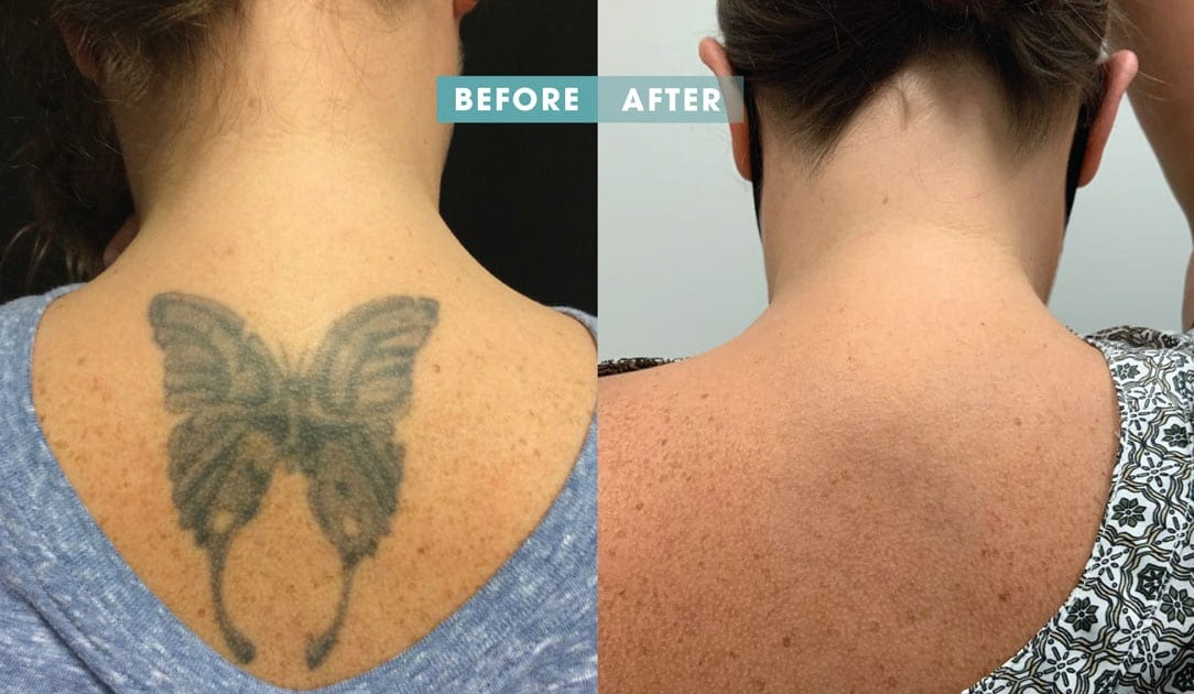 Things to be in your mind when getting a tattoo removal treatment