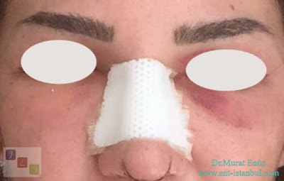 Bruising and Swelling After Rhinoplasty